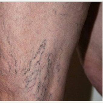 55-64 year old woman treated with Vein Treatment before 2028727