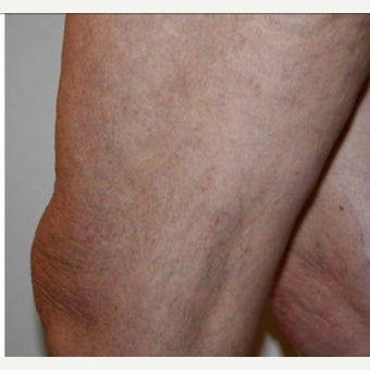 55-64 year old woman treated with Vein Treatment after 2028727