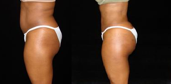 Brazilian Buttocks Lift before 1246919