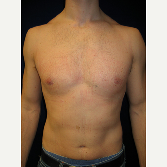 25-34 year old man treated with Male Breast Reduction after 3727260