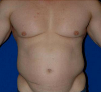 35-44 year old man treated with Liposuction before 3549926