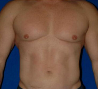 35-44 year old man treated with Liposuction after 3549926