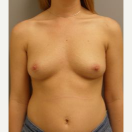 25-34 year old woman treated with Breast Implants before 3108152