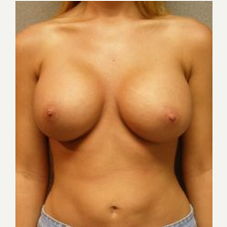 25-34 year old woman treated with Breast Implants after 3108152