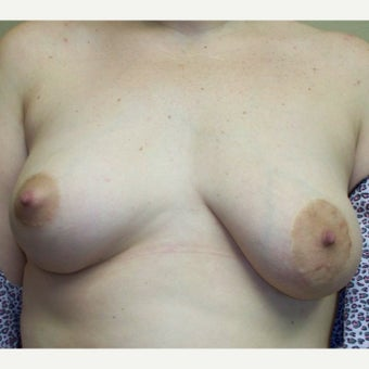 25-34 year old woman treated with Breast Reduction before 1778860