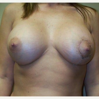 25-34 year old woman treated with Breast Reduction after 1778860