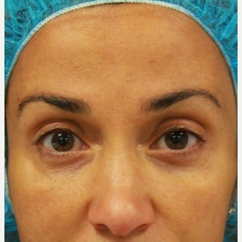 41 year old female treated with Botox for forehead lines after 3071493