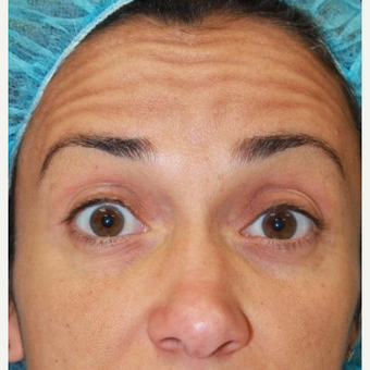 41 year old female treated with Botox for forehead lines before 3071493