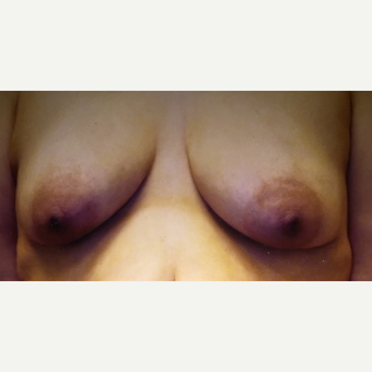 45-54 year old woman treated with Breast Lift before 3333336