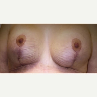 45-54 year old woman treated with Breast Lift after 3333336