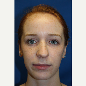 18-24 year old woman treated with Rhinoplasty before 3643281