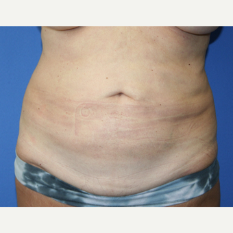 55-64 year old woman treated with Tummy Tuck before 2993955