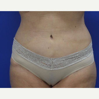 55-64 year old woman treated with Tummy Tuck after 2993955