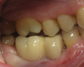 Mini dental implants support a dental bridge to replace missing teeth after 1168524