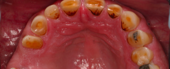 55-64 year old man treated with Dental Crown before 3395103