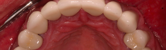 55-64 year old man treated with Dental Crown after 3395103