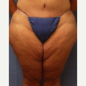 45-54 year old woman treated with Thigh Lift before 3630354