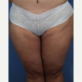 45-54 year old woman treated with Thigh Lift after 3630354