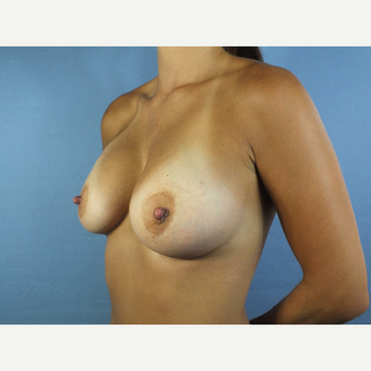 25-34 year old woman treated with Breast Augmentation after 3123634