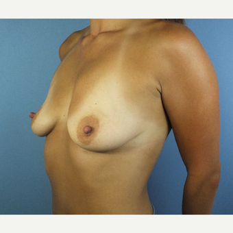 25-34 year old woman treated with Breast Augmentation before 3123634