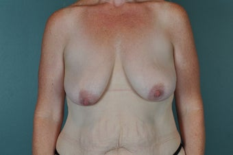 Breast Lift before 1134166