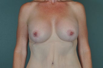 Breast Lift after 1134166