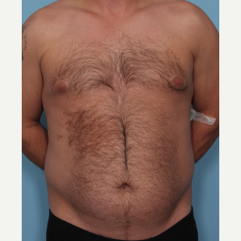 35-44 year old man treated with Fat Transfer before 3577843