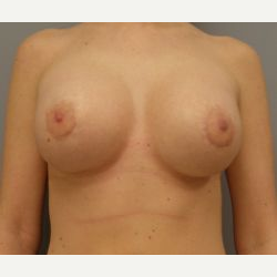 25-34 year old woman treated with Breast Implants after 3108058