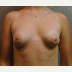 25-34 year old woman treated with Breast Implants before 3108058