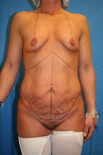 45 y/o With complaint of Mammary Hypoplasia (small breasts) and redundant Abdominal Wall Skin before 1240386