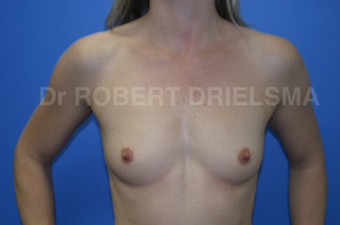 Breast Augmentation before 1509196