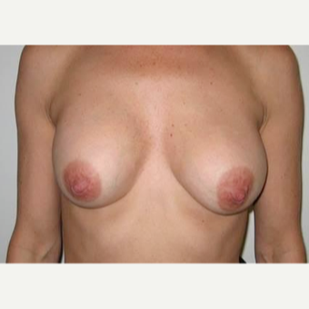 35-44 year old woman treated with Breast Implant Removal/Replaced with 400cc smooth saline. before 2273309