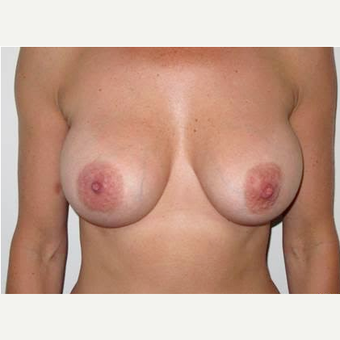 35-44 year old woman treated with Breast Implant Removal/Replaced with 400cc smooth saline. after 2273309