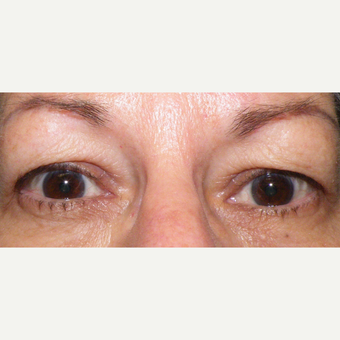55-64 year old woman treated with Eyelid Surgery before 3441075