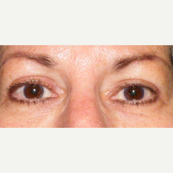 55-64 year old woman treated with Eyelid Surgery after 3441075