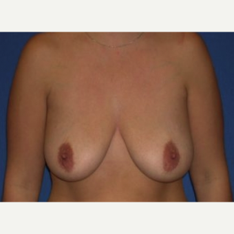 25-34 year old woman treated with Breast Augmentation before 3219989