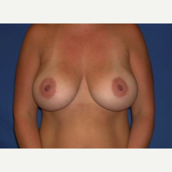 25-34 year old woman treated with Breast Augmentation after 3219989