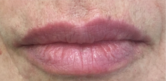 55-64 year old woman treated with Lip Lift after 3802392