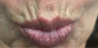 55-64 year old woman treated with Lip Lift 3802392