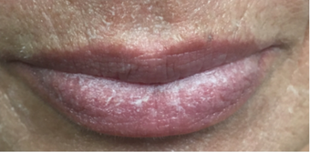 55-64 year old woman treated with Lip Lift before 3802392