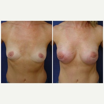 45-54 year old woman treated with Breast Reconstruction before 2050690