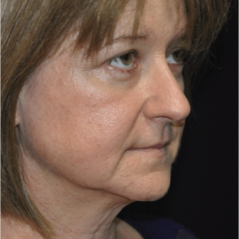 Facelift before 3162687