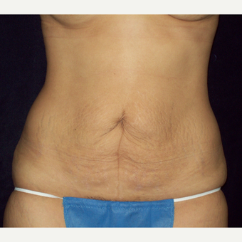 25-34 year old woman treated with Full Tummy Tuck before 3143252