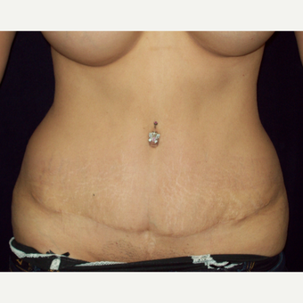 25-34 year old woman treated with Full Tummy Tuck after 3143252