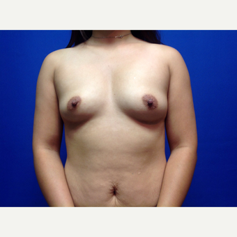 25-34 year old woman treated with Breast Augmentation before 3019020