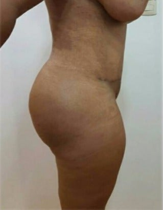 25-34 year old woman treated with Tummy Tuck after 3301070