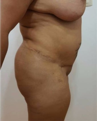 25-34 year old woman treated with Tummy Tuck before 3301070