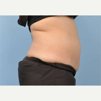 35-44 year old woman treated with CoolSculpting after 3802068