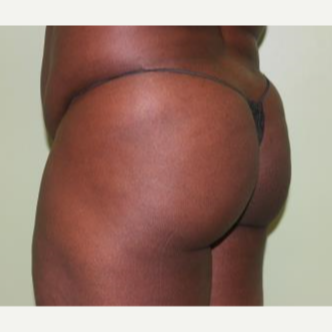 35-44 year old woman treated with Brazilian Butt Lift before 3241564