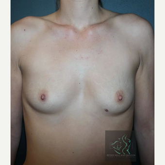 35-44 year old woman treated with Breast Implants before 3109847